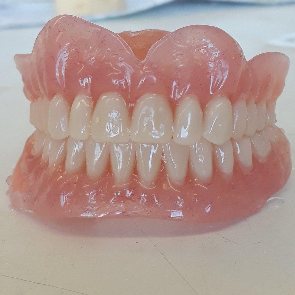 new dentures.jpg
